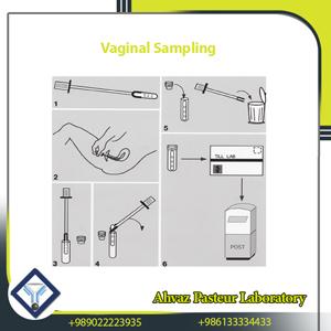vaginal sampling
